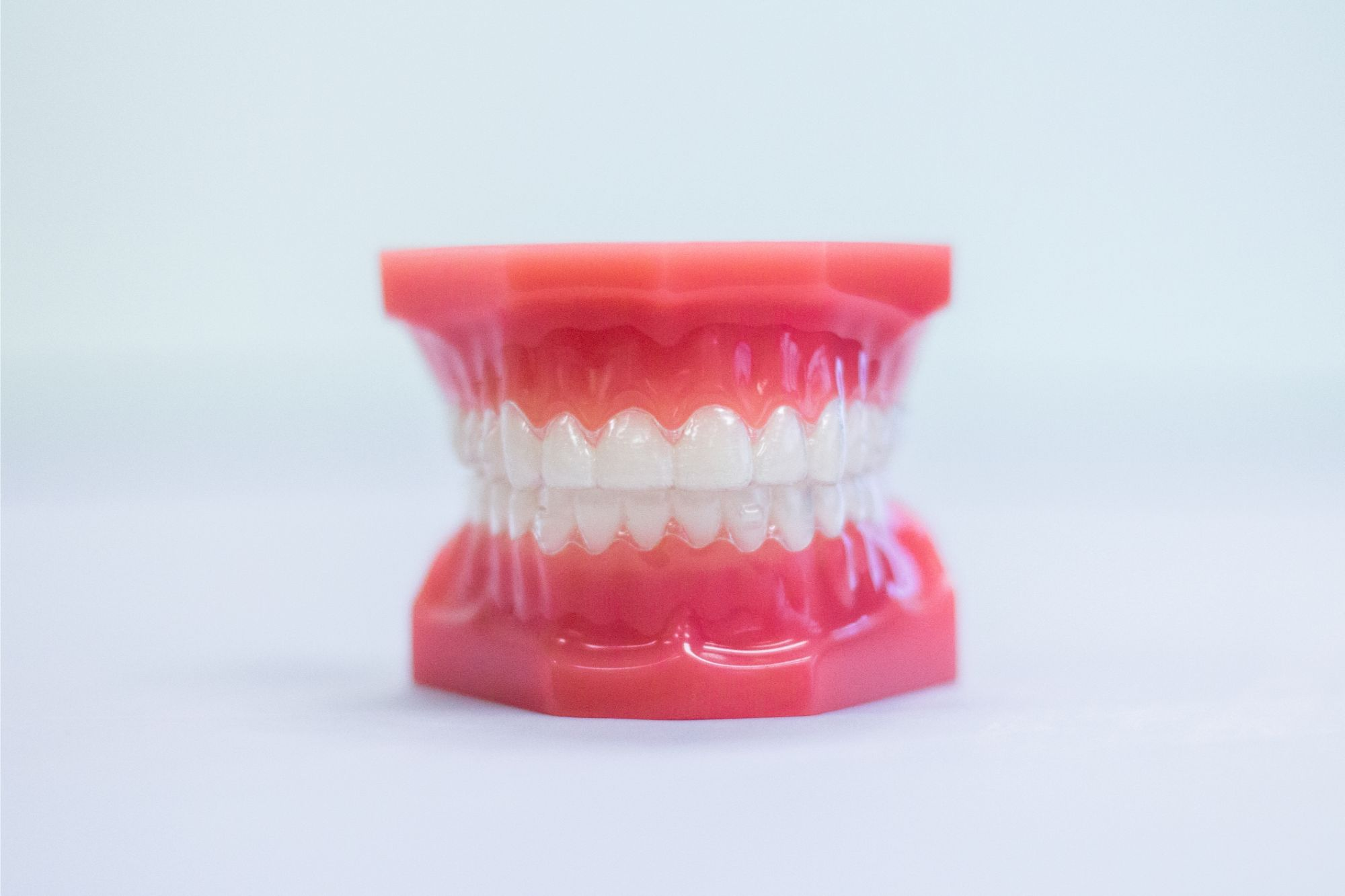 model teeth with clear aligners