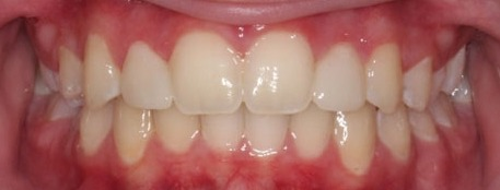 Overbite-and-cosmetic-dentistry-after